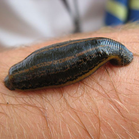 After getting out of my swimming pond, I had a leech on my leg! How do I remove leeches from my pond?